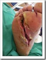 mercury-foot-injury-3